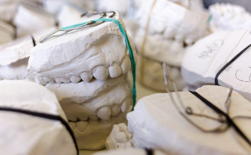 Zła droga odżywiania się to większe braki w zębach natomiast także ich zgubę
